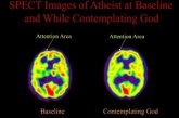 Spirituality and complexity of the 'atomic brain'